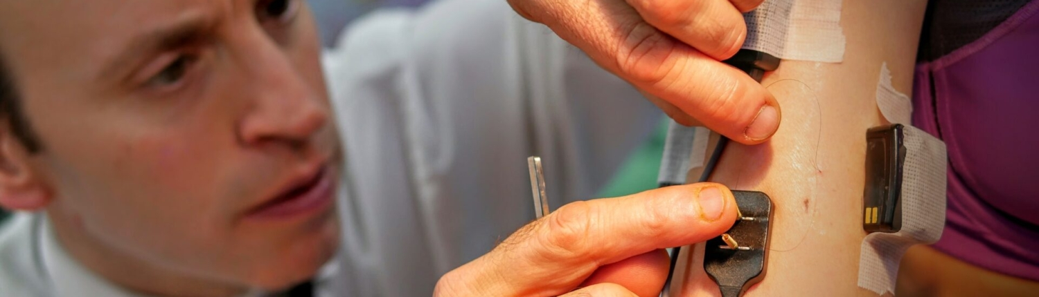 doctor inserting fine wire emg into arm